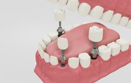 מה עדיף - השתלות שיניים או גשר?