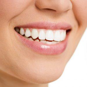 כל המידע על טיפולי שיניים אסתטיים